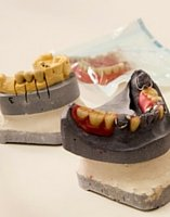 Cirugia dental practicada en Dentista Guadix