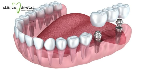 ¿Mi implante dental me durará para siempre?