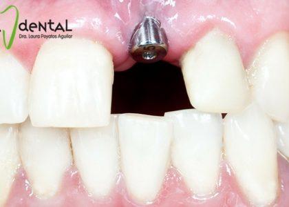 ¿Son dolorosos los implantes dentales?