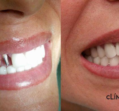 ¿Hay diferencias entre fundas dentales y carillas?