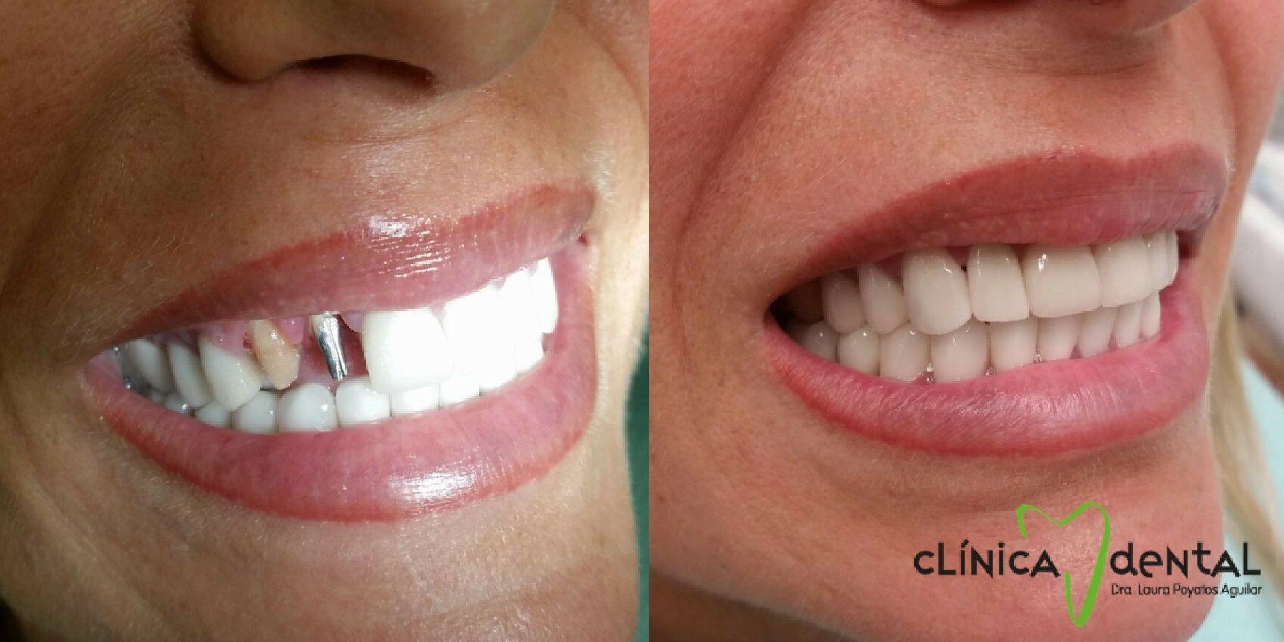 corona-dental-dentista-guadix.jpg