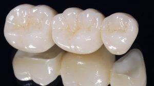 foto fundas dentales