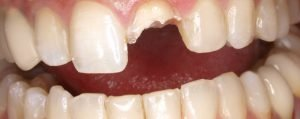 imagen diente roto