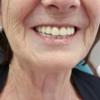 Reconstrucción dental Dentista Guadix