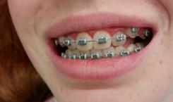 Brackets ortodoncia en paciente