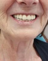 Imagen de reconstrucción dental realizado en la clínica dental Dentista Guadix por la Dra Laura Poyatos