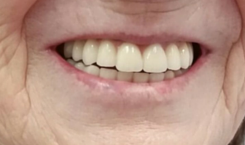 reconstrucción dental - Dentista en Guadix