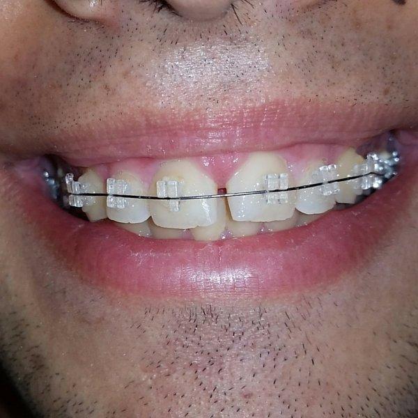 Ortodoncia con brackets de cerámica puestos en Clínica dental Guadix