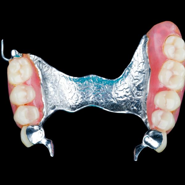 Prótesis dental clínica dental Guadix