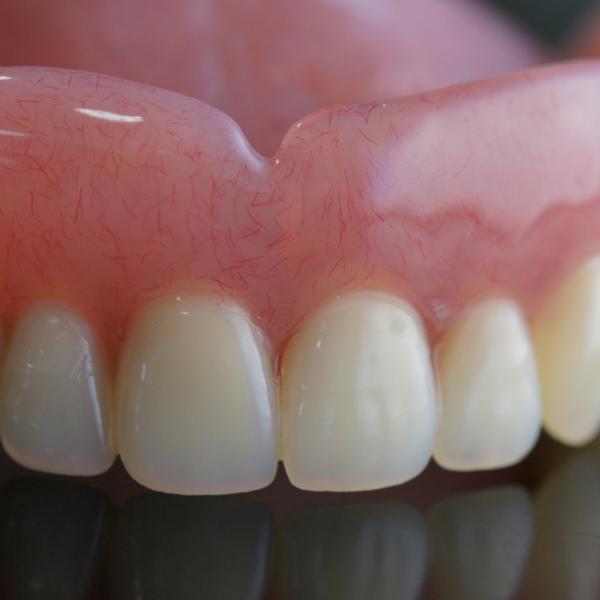 Prótesis dental de resina elaborada en clínica dental Guadix