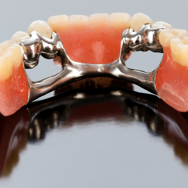 Prótesis dental esquelética elaborada en clínica dental Guadix