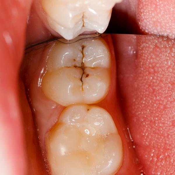 Selladores dentales clínica dental guadix