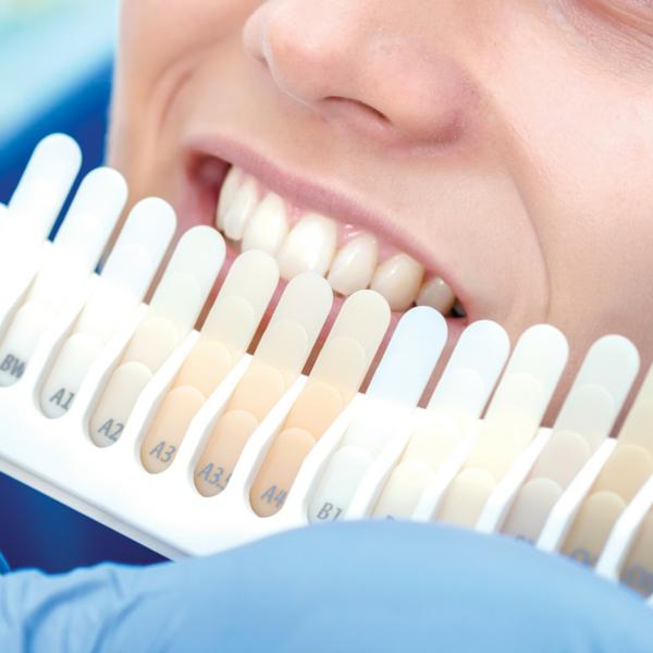 blanqueamiento dental en casa - dentista guadix