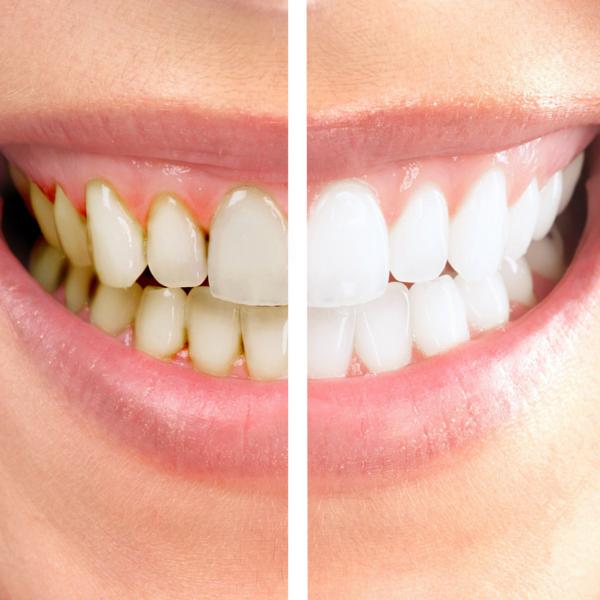 blanqueamiento dental en consulta - dentista guadix