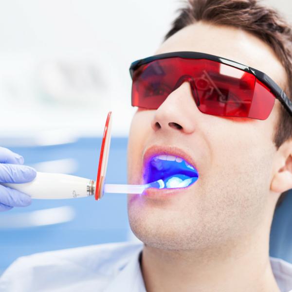 blanqueamiento dental en la consulta de clínica dental guadix