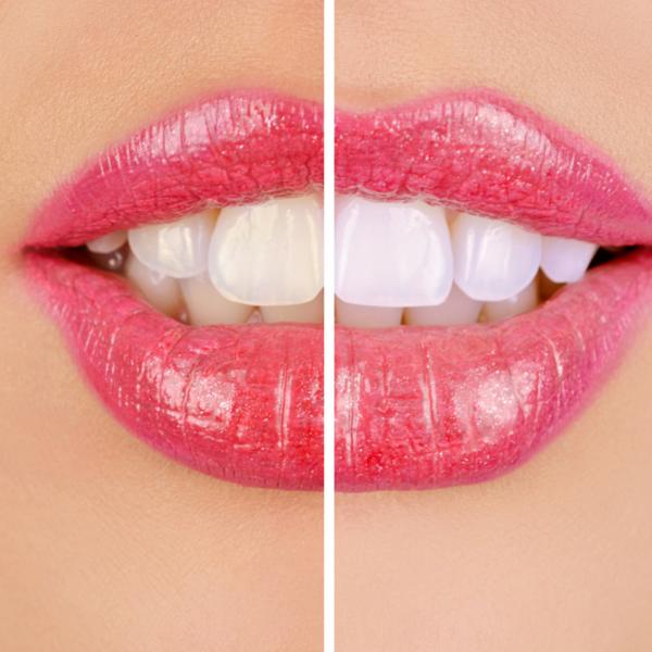 blanqueamiento dental realizado en casa Dentista guadix