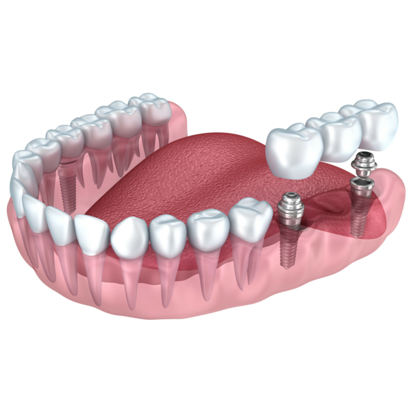 dibujo de implantes dentales clínica dental guadix