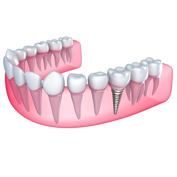 dibujo explicando que son los implantes dentales clínica dental guadix