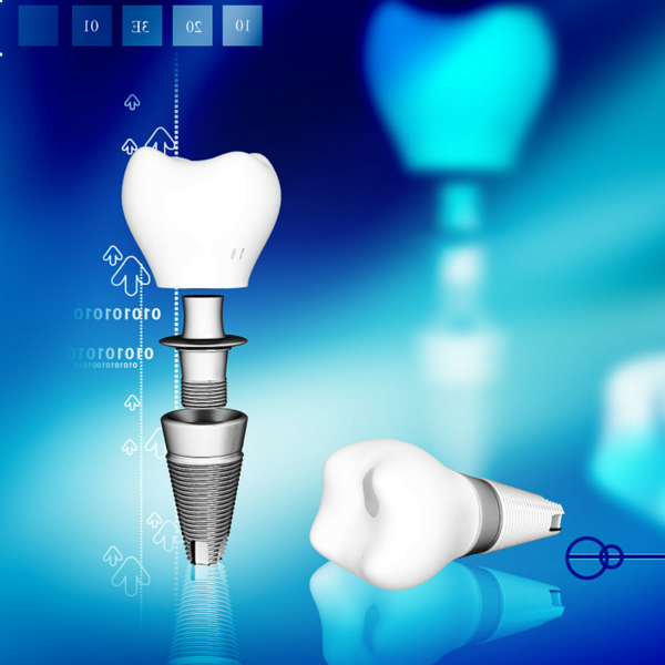 ejemplo de implante dental clínica dental guadix