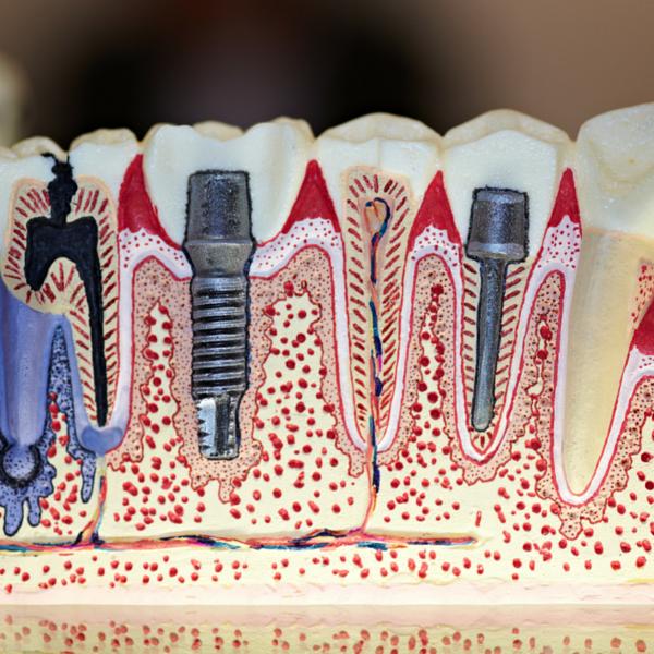 ejemplo de implantes dentales clínica dental guadix confía siempre en expertos