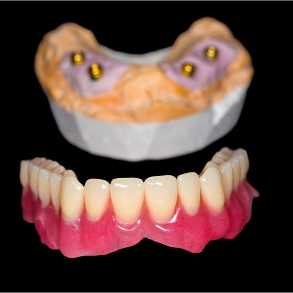 ejemplo de implantes dentales clínica dental