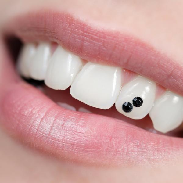 ejemplo de joyería dental cristal negro