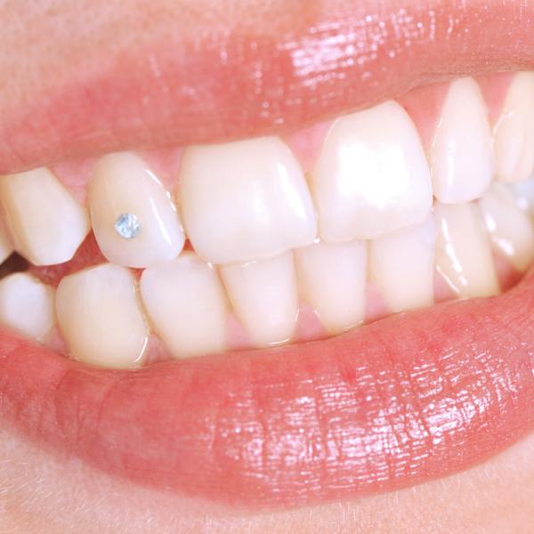 ejemplo de joyería dental