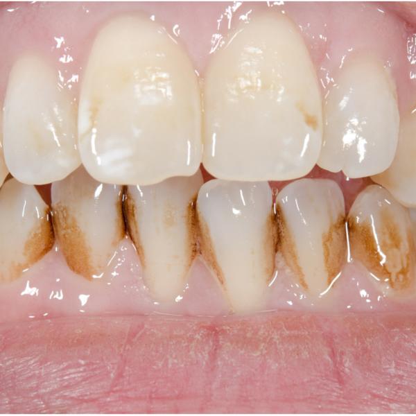 ejemplo de necesidad de limpieza bucal