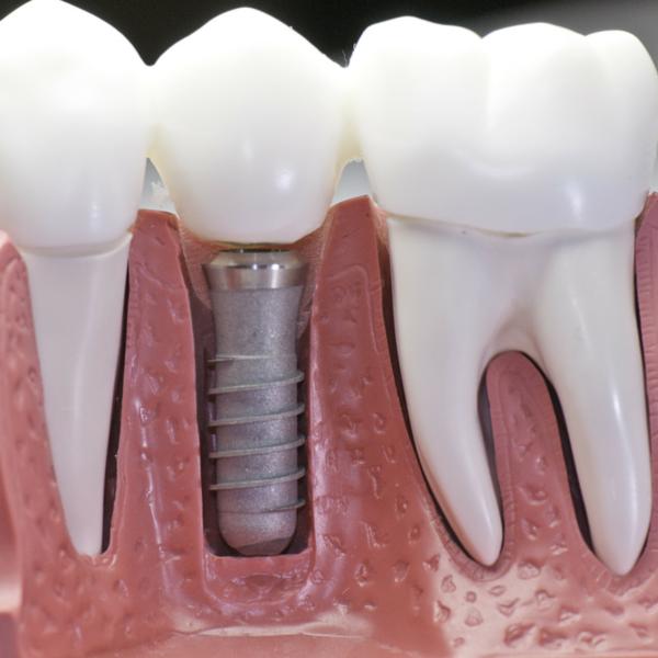 ejemplo implante dental por clínica dental guadix