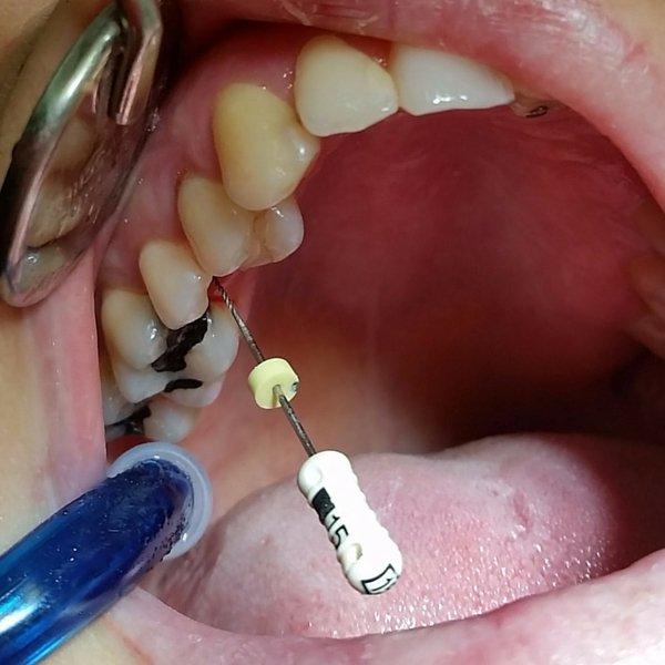 endodoncia realizada en Dentista Guadix por la Dentista Laura Poyatos