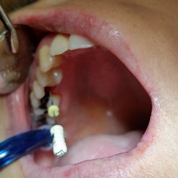 endodoncia en adulto realizada en la clínica dental de Guadix