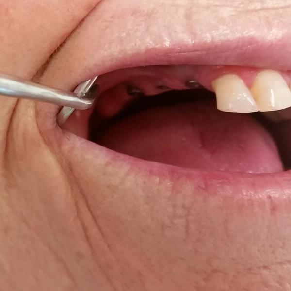 implantes dentales realizados en clínica dental guadix antes