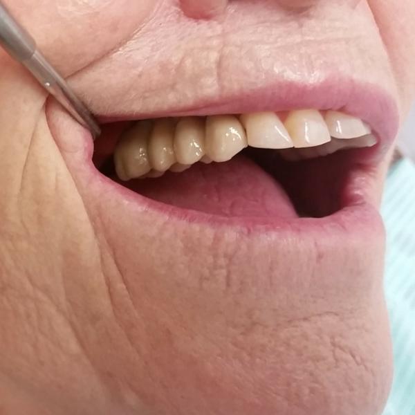 implantes dentales realizados en clínica dental guadix después