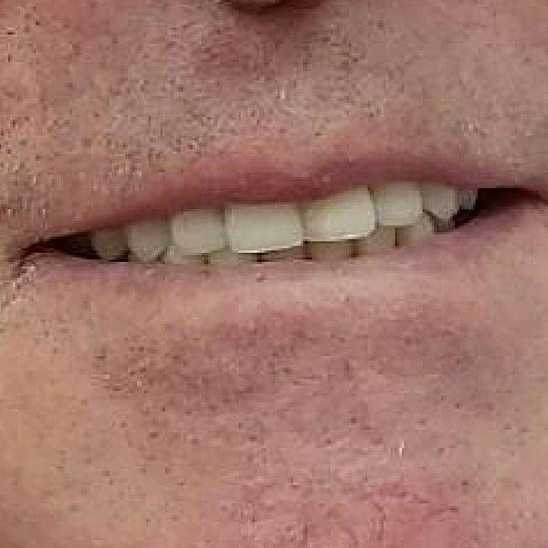 Reconstrucción dental - Dentista Guadix