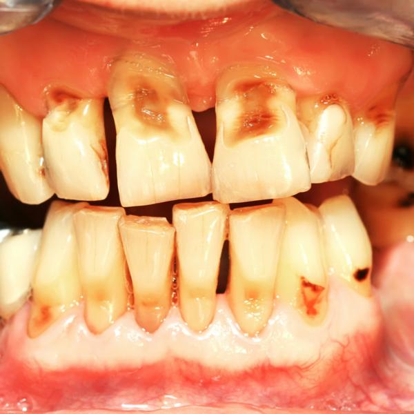 Ejemplo claro de necesidad de realizar un raspado dental - Dentista Guadix