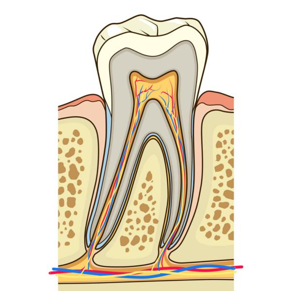Imagen gráfica de endodoncia en una muela - Dentista Guadix