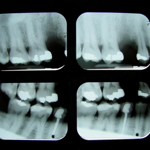 Radiografía de endodoncia - Dentista Guadix
