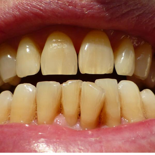 ejemplo claro de necesidad de limpieza dental - Dentista Guadix