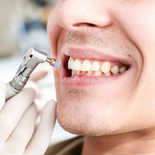 limpieza dental o profilaxis - Dentista Guadix