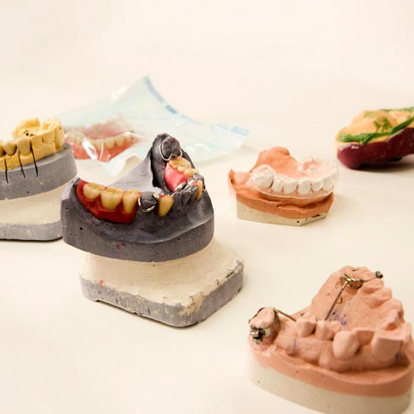 protesis dental corona dental implante Dentista Guadix