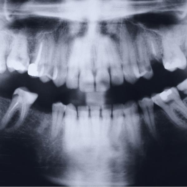 radiografía de una endodoncia - Dentista Guadix