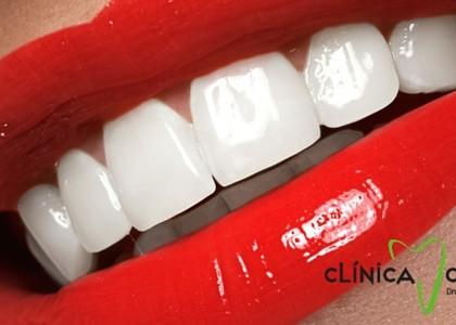 Blanqueamiento dental, ¿posibles inconvenientes?