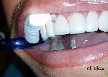 Corona dental ¿Qué son, tipos y cuál es mejor?