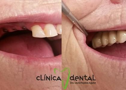 Implantes dentales ¿se pueden poner siempre que falten piezas?