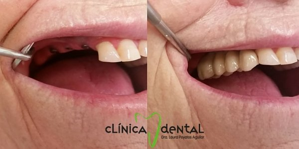 implante dental dentista Guadix