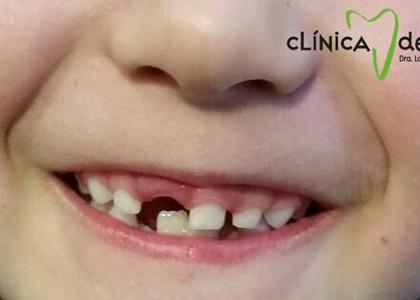 ¿Es normal que los dientes de leche sean más blancos que los definitivos?