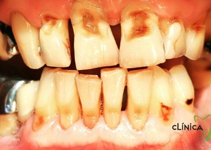 ¿Cómo afecta el cuidado de los dientes a mi salud?