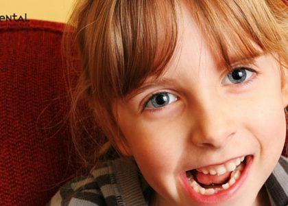 Fluoración dental, ¿qué es y cuándo se recomienda?