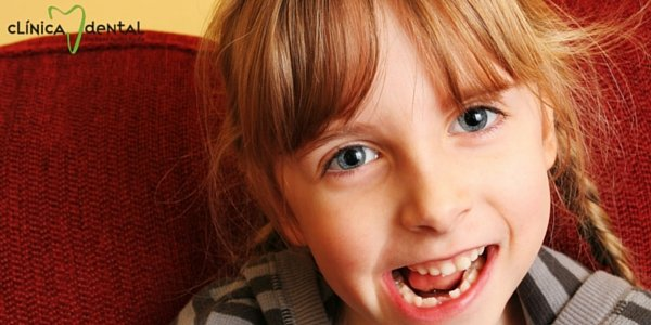 fluoracion dental para niños