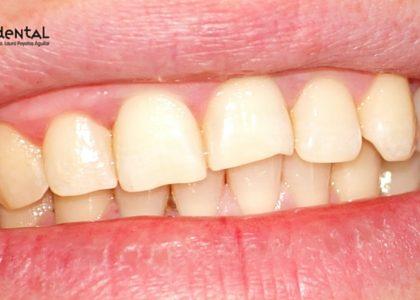 ¿Se me pueden caer los dientes si tengo piorrea?